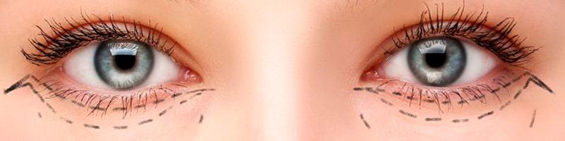 blepharoplasty tunisia