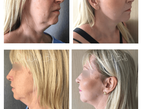 Facelift and facial fat transfer