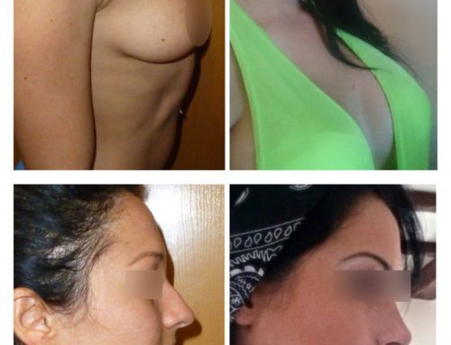 Breast augmentation and rhinoplasty
