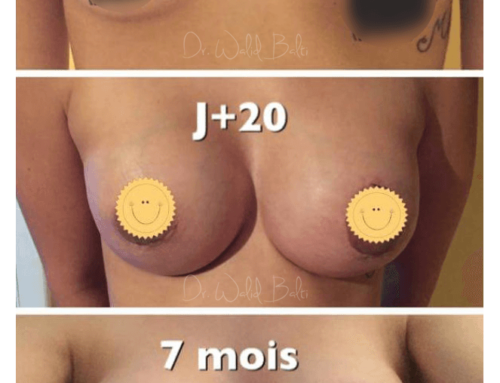 Breast implants with areolar lift