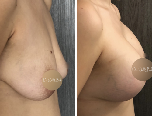 Lift and breast augmentation