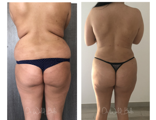 Liposuction and buttock augmentation with fat transfer