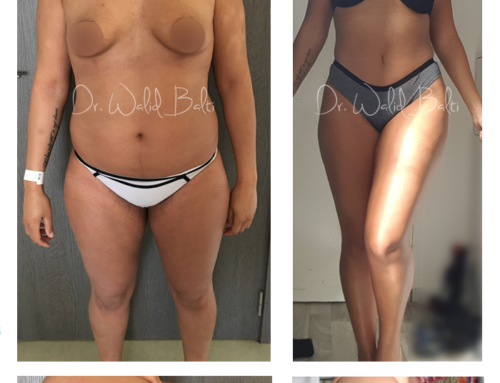 Liposuction, buttock augmentation with fat transfer and breast augmentation with implants