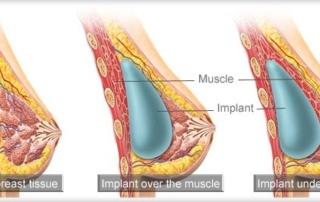 breast implants positions tunisia