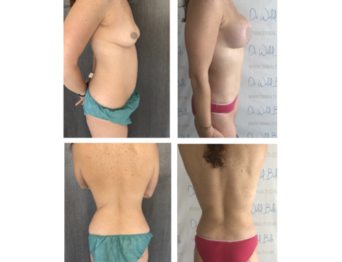Breast lift with implants and liposuction for love handles