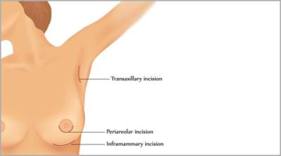 breast augmentation incisions tunisia