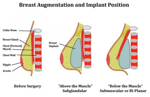 positions breast implants