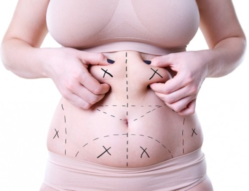 Tummy tuck for a flat stomach : is it for you ?