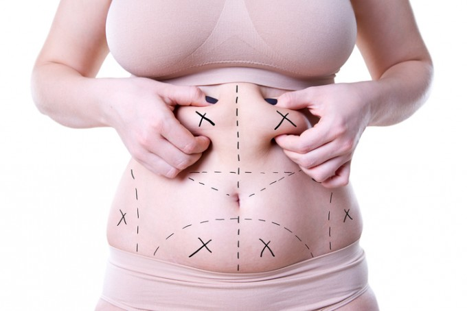 abdominoplasty tunis
