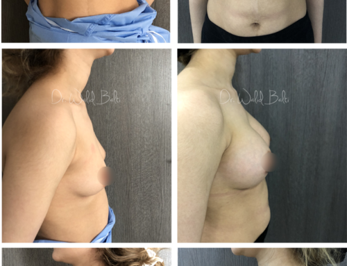 Breast augmentation with round implants dual plane