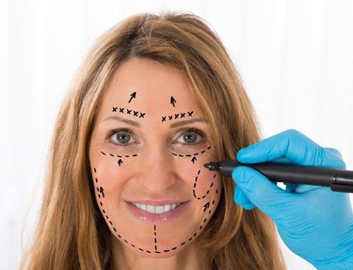 The modern facial rejuvenation approach