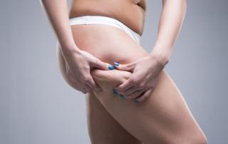 hip liposuction tunisia
