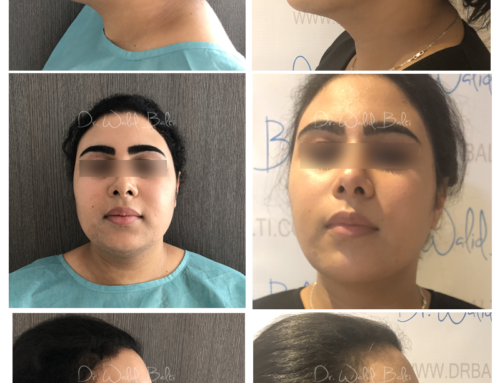 Neck liposuction and fat grafting chin augmentation