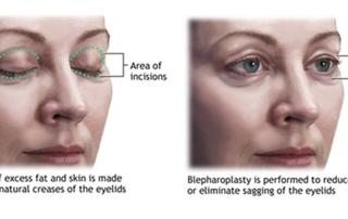 eyelid surgery tunis