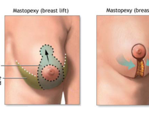 Here is how breast lift surgery offers durable results