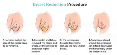 breast reduction tunisia