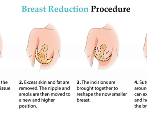 What you can expect from breast reduction recovery and results