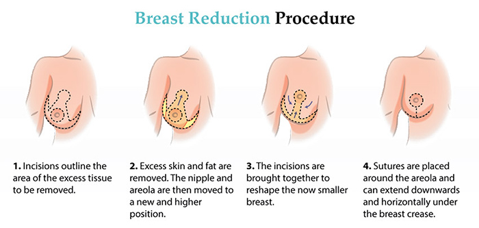 breast reduction tunisia