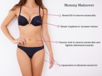 mommy makeover tunis