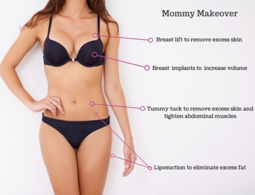 Mommy makeover : correct pregnancy related unwanted changes