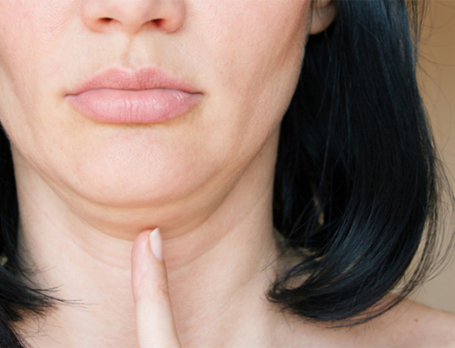 Double-chin causes and treatments : they differ
