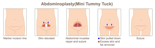 mini tummy tuck tunisia