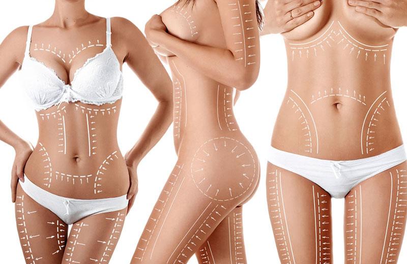 the liposuction