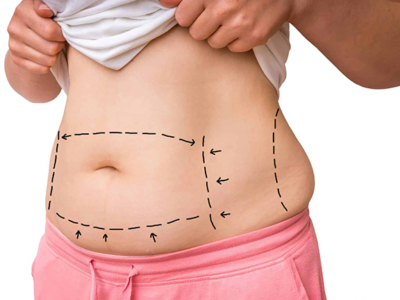 tummy tuck surgery tunisia