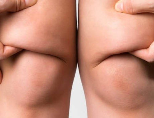 Treating fat deposits in the knees for slender legs
