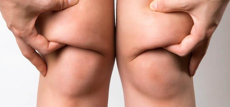 Fat Knees treatment tunisia