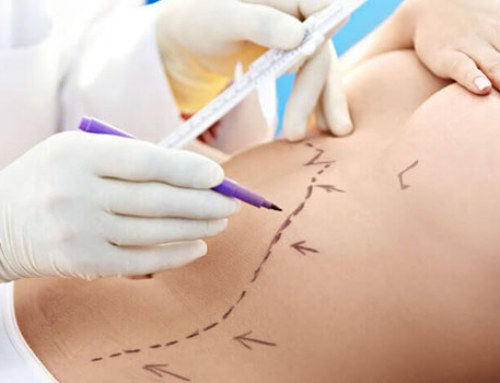 How and when you should consider liposuction surgery