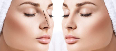 about rhinoplasty before consulting a surgeon