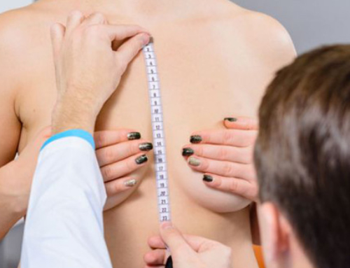 Breast ptosis : what it is and how to treat it