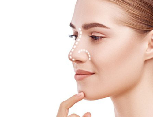 A few answers about rhinoplasty before you schedule a consultation