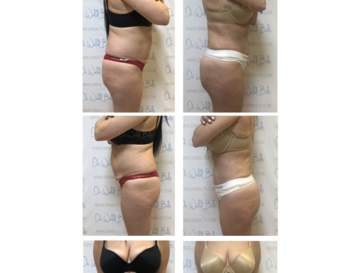 Tummy tuck, liposuction and brazilian butt lift