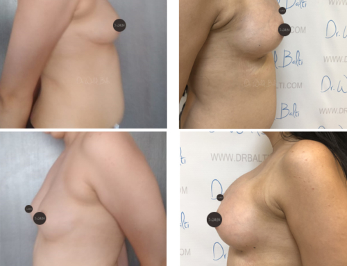 Breast augmentation dual plane