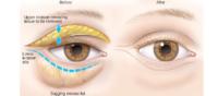 eyelids surgery tunisia