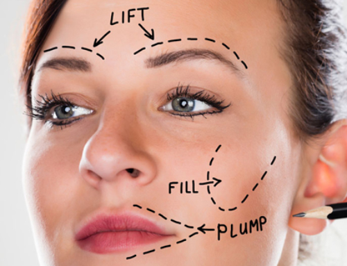 What to know before getting a facelift