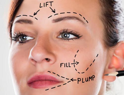 Latest face lift techniques
