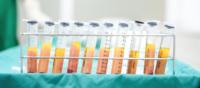 fat grafting breast augmentation tunisia