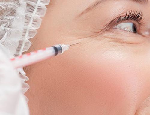 Wrinkles, dark circles and hyaluronic acid
