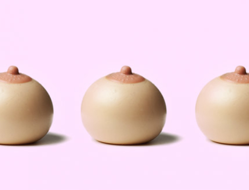 How to correct overly large or distended areolas