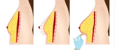 fat transfer breast tunis