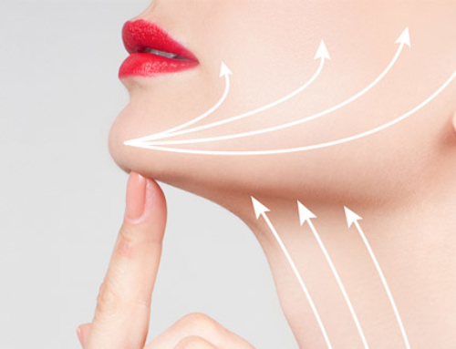 Submental liposuction combined to face and neck lift