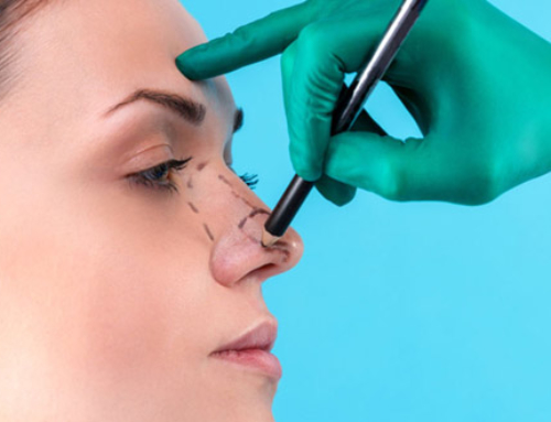Nose defects targeted by rhinoplasty
