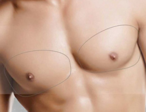 Hypertrophied male breasts : what's the cause ? How is it treated ?