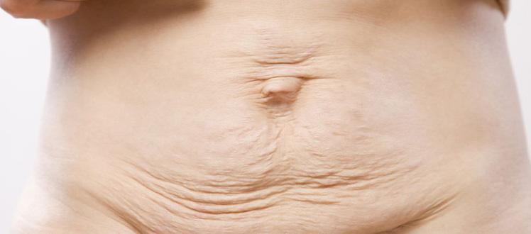 cosmetic surgery Post Pregnancy tunisia