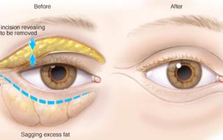 blepharoplasty eyelid upper lower tunisia