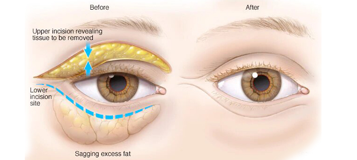 blepharoplasty eyelid upper lower tunisia