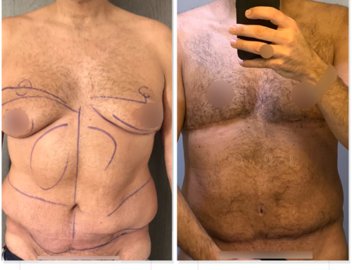Liposuction, revision of tummy tuck performed by another surgeon and gynecomastia